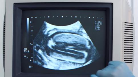 汉堡王脑洞广告:假如给汉堡孕检?